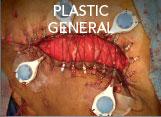 PLASTIC GENERAL